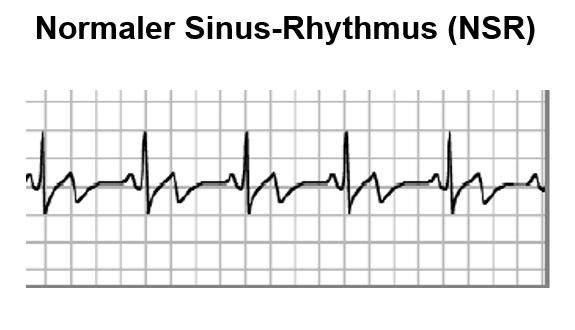 normaler-Sinus-Rhythmus